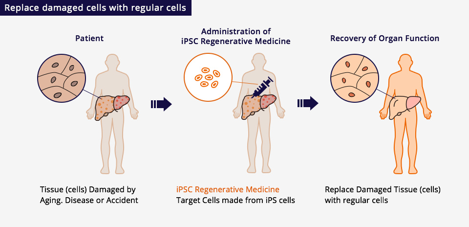 Replace damaged cells with regular cells