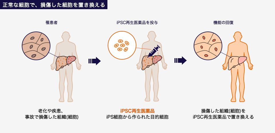 正常な細胞で、損傷した細胞を置き換える